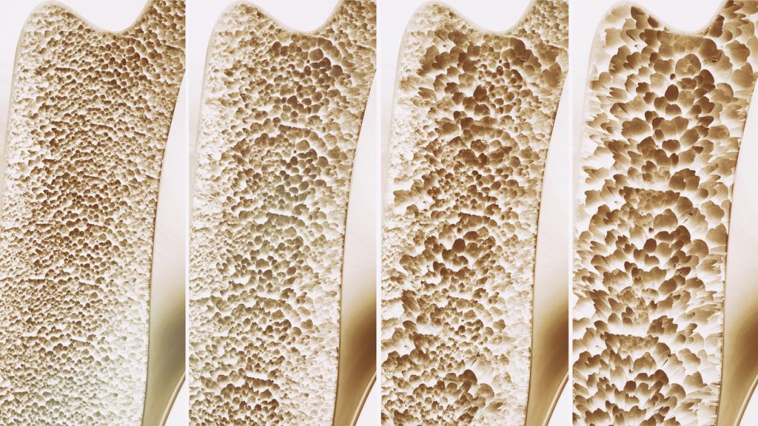 Osteoporosis: Preventing, Stopping, Reversing!